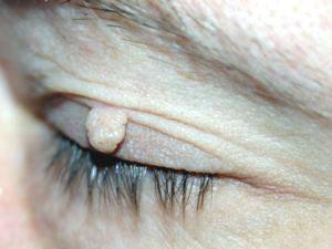 Bőrgyógyászat növényi szemölcs. Szemölcsök: Mi okozza és milyen típusai vannak?