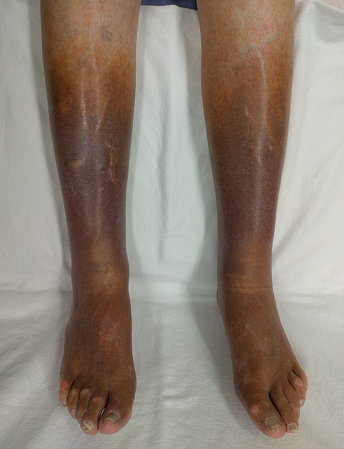 Eucerin®: Atópiás száraz bőr | Atópiás dermatitisz gyulladt fázisa a testen